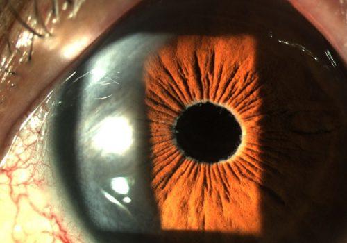 Ojo izquierdo